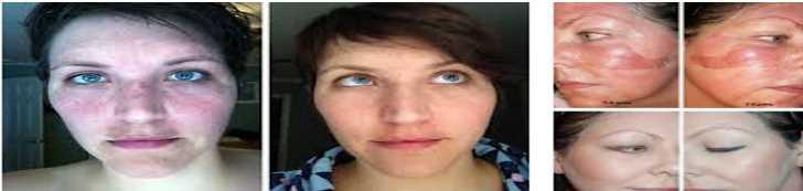 Пилинг Джессера до и после, фото лица женщины