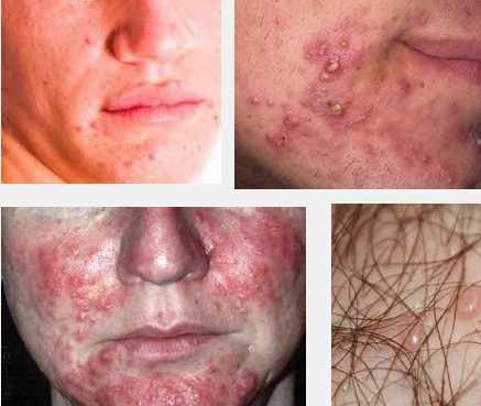 Аллергия горло лечение народные средства